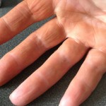 my hand after processing plums